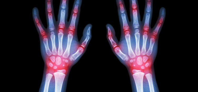 Join in on Joint Pain Solutions: Medical Marijuana for Arthritis